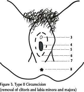 Type II Circumcision (removal of clitoris and labia minora and majora)